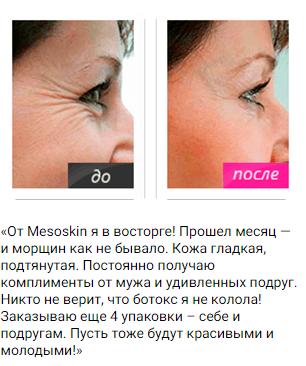 РЕАЛЬНЫЕ ОТЗЫВЫ О «Mezoskin»2
