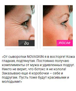 РЕАЛЬНЫЕ ОТЗЫВЫ О «Novaskin»2
