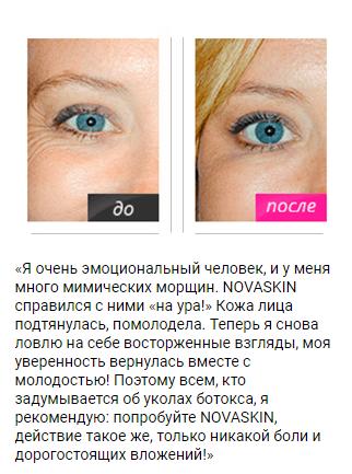 РЕАЛЬНЫЕ ОТЗЫВЫ О «Novaskin»3