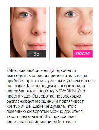 РЕАЛЬНЫЕ ОТЗЫВЫ О «Novaskin»