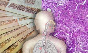 Большинство россиян считает лечение рака легкого слишком дорогим и поэтому малодоступным